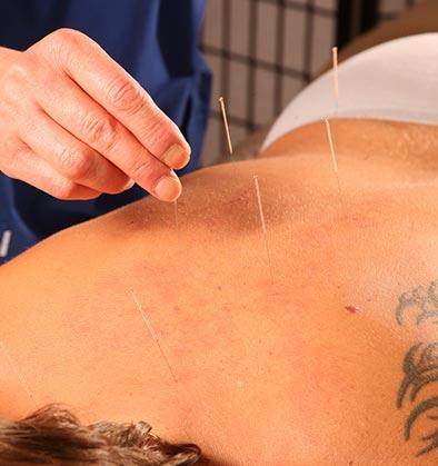 Процедура иглоукалывания в центре династии Лин